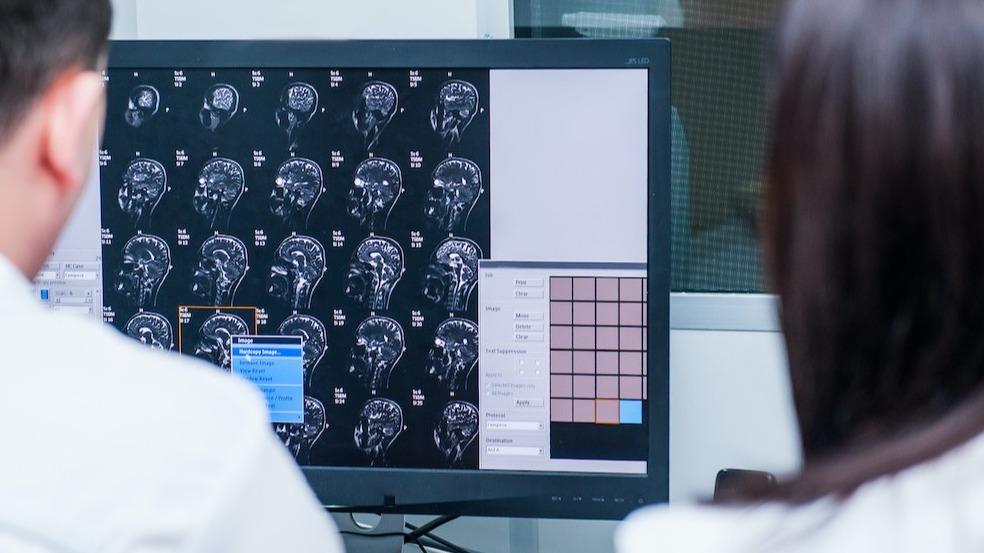 Anatomie du cerveau : le rôle de la jonction temporo-pariétale